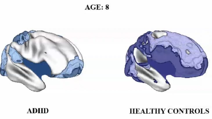 成長するADHDの脳